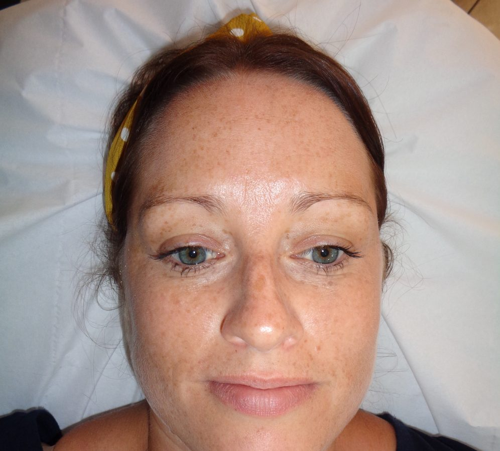 Beauty Classics eyebrow tattooing, before pic